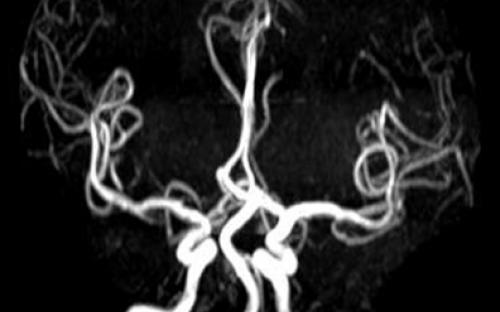 Ressonância Magnética LBM
