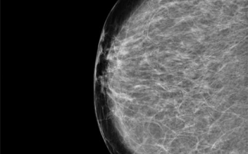 Mamografia LBM