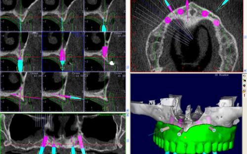 Tomografia para Implantes LMB